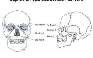 Верхняя челюсть: строение, функции, возможные повреждения