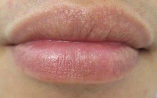 Отчего образуются белые пятна на губах и как их вылечить