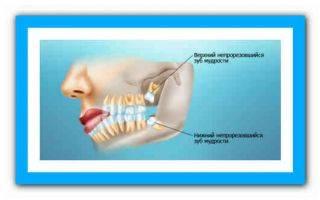 Киста зуба и гайморит