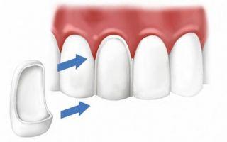 Бормашины уходят в прошлое: регенерация зубов от неандертальцев, лечение без пломб и наращивание эмали