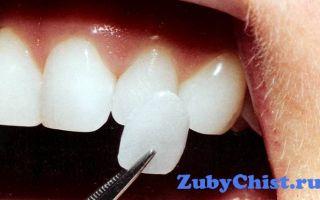Что лучше поставить на передние зубы: коронки или виниры