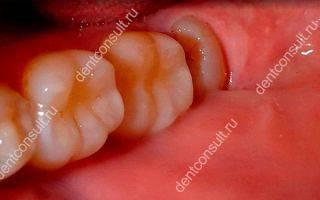Что такое дистопированный и ретинированный зуб мудрости?