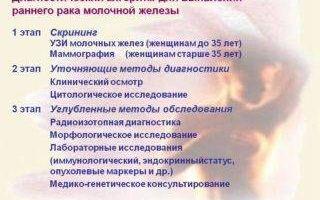 Заболевания молочной железы у женщин