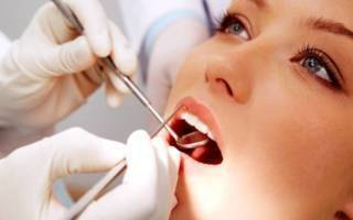 Всё, что нужно знать про удаление зубного камня лазером