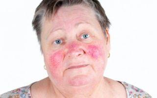 Покраснение носа: причины, симптомы и связь с болезнями, как избавиться и лечить