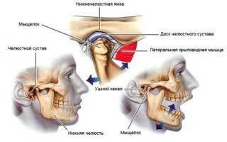 Воспаление челюстного сустава: симптомы и лечение