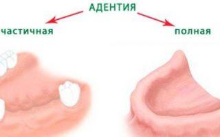 Почему зубы растут криво