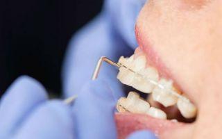 Должны ли болеть зубы после смены дуги?