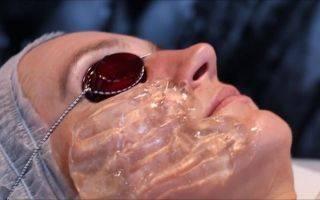 Рф лифтинг тела (термолифтинг)