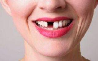 Что делать, если откололся кусочек зуба