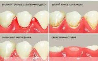 Чешутся зубы: почему зудят внутри у взрослых, детей, как лечить