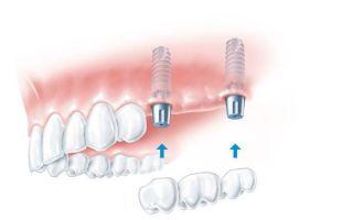 Одномоментная имплантация зубов: можно ли восстановить зубы за пару дней?