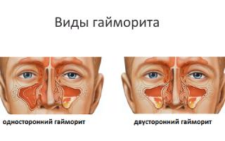 Ингаляции при гайморите небулайзером: с каким лекарством наиболее эффективны