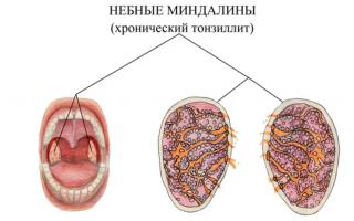 Можно ли лечить зубы при ангине