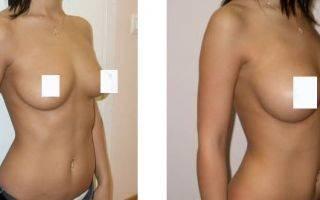 Все за и против метода увеличения груди препаратами на основе гиалуроновой кислоты