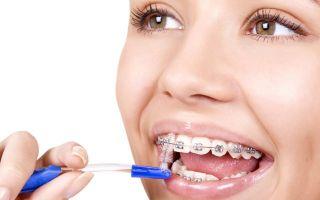 Правила чистки зубов с брекетами: выбор щётки и пасты, использование нити и ирригатора