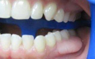 Появление экзостоза на десне после удаления зуба и хирургическое вмешательство