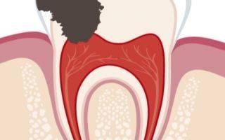 Международная классификация болезней полости рта, слюнных желёз и челюстей (мкб-10)