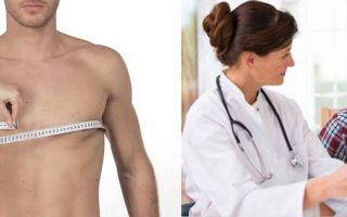 Удаление гинекомастии операцией: показания и эффективность, возможность рецидива, фото до и после