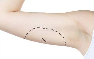 Как подтянуть кожу после похудения (лучшие методы)?