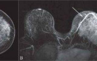 Исследование протоков молочных желез с помощью дуктографии