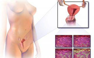 Лечение эндометриоза гормональными препаратами и народными средствами в домашних условиях
