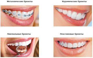 Лечение брекетами: этапы, сроки и особенности ношения брекет-систем