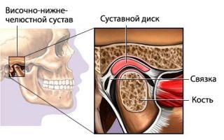Синдром болевой дисфункции височно-нижнечелюстного сустава