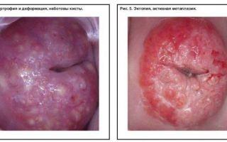 Плоскоклеточная метаплазия шейки матки: что это такое и как ее лечить
