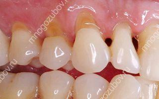 Как нарастить зуб если остался только корень