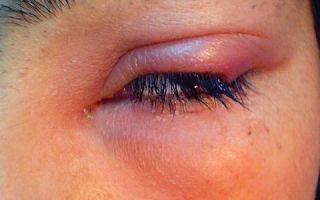 Болят глаза когда смотришь вверх и по сторонам при простуде