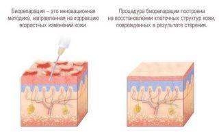 Необычная биорепарация: процедура, ее особенности и противопоказания