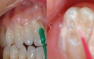 Чувствительность зубов после пломбирования