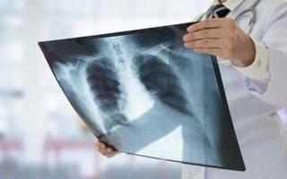 Туберкулез без температуры: возможно ли такое?