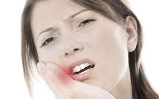 Как обезболить стоматит: 5 лучших средств