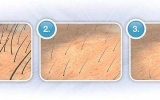 Максимальная длина волос для шугаринга: советы мастера