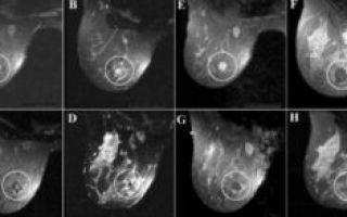 Симптомы и лечение фибромы груди