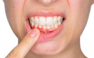 Симптомы и лечение гингивита у взрослых, причины болезни и ее фото
