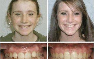 Меняют ли брекеты лицо и внешность человека
