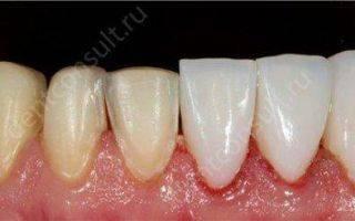Виды протезирования зубов: показания к назначению, плюсы и минусы