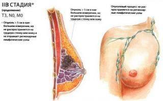 Новейшие препараты для лечения рака молочной железы