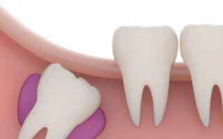 Лезет зуб мудрости: что делать, если при этом болит десна