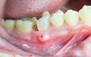 После удаления зуба из десны торчит надкостница