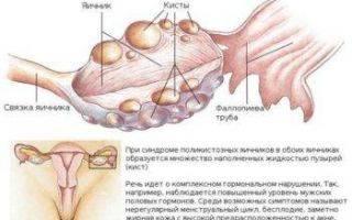 Лечение серозометры в постменопаузе