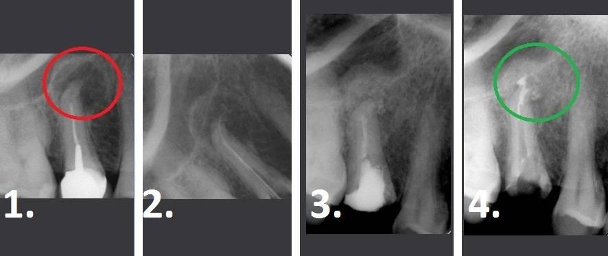 Чем опасно воспаление надкостницы зуба, методы лечения