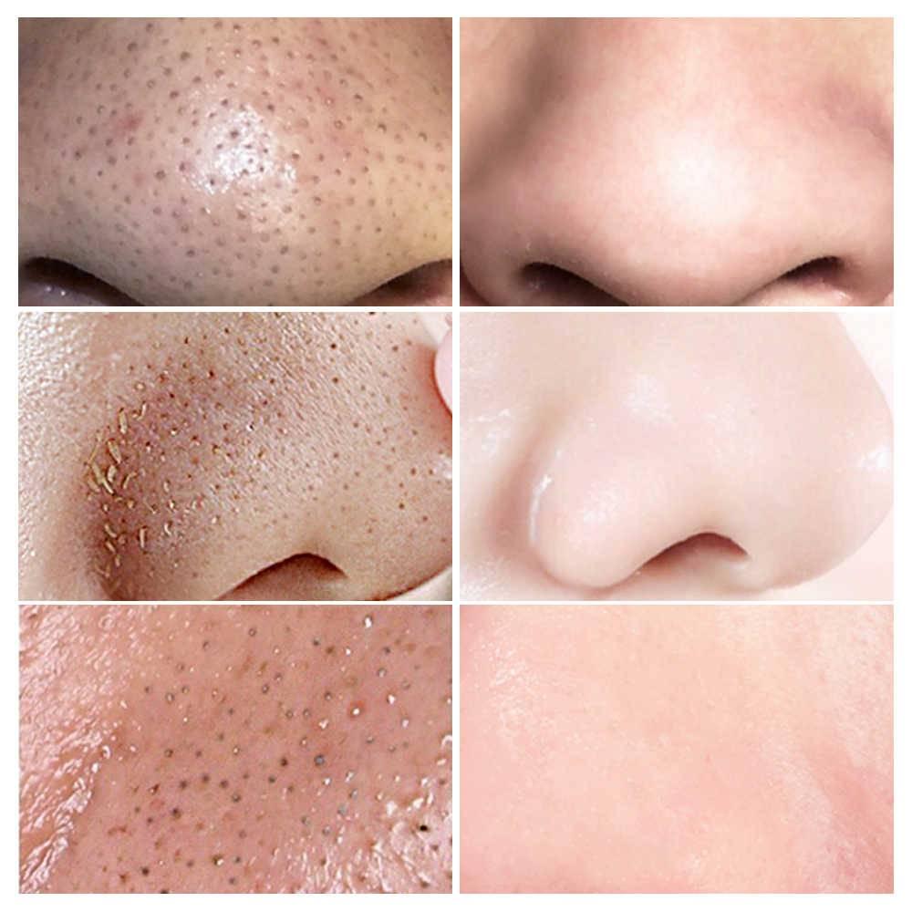 Лучшие 14 домашних масок для сужения пор на лице