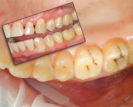 Пульсирующая боль в зубе: о чем говорит и как ее лечить?