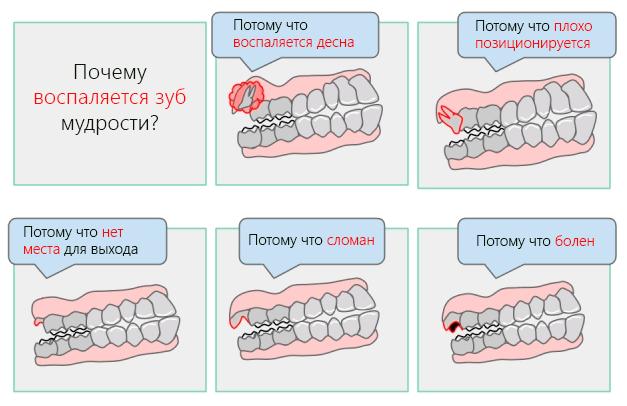 Удаление зуба мудрости: показания, осложнения и рекомендации после удаления