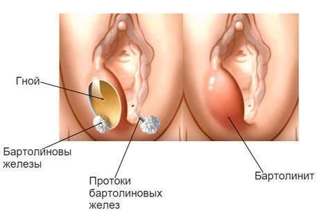 Симптомы и лечение бартолинита у женщин, 6 профилактических мер