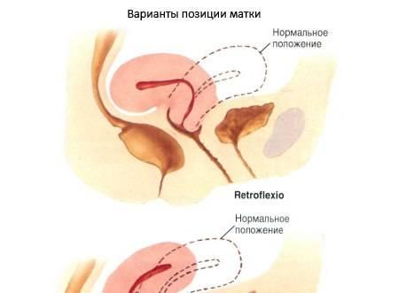Положение матки anteflexio и другие виды